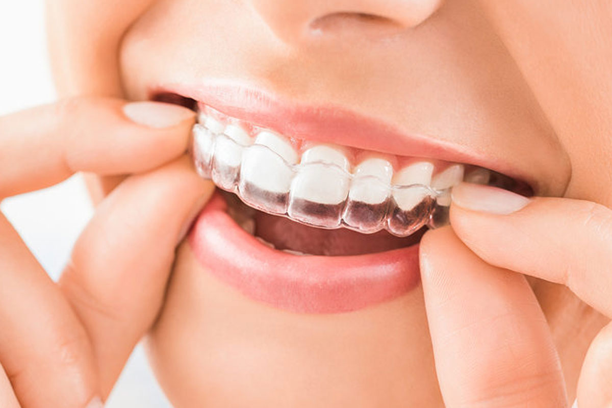 Cost of Braces in India - Snazzy Clear Aligners